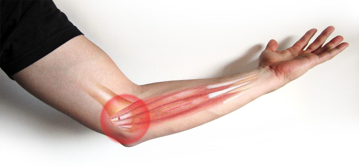 Lesão de Esforço Repetitivo: Epicondilite